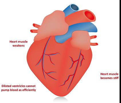 heart-failure