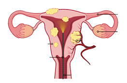 Fibroid removal directly through the vagina with hysteroscopic or vaginal myomectomy