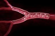 UFE embolic particles occlude blood vessels feeding fibroid