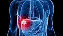 3D image of hepatocellular carcinoma