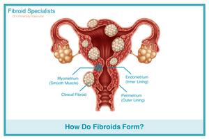 how do fibroids form