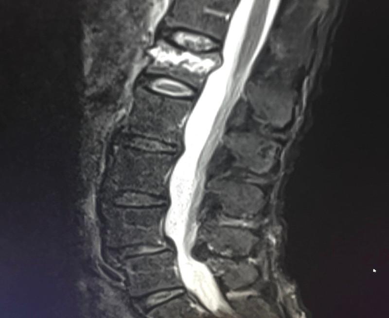 vertebral-augmentation-spinal-ablation