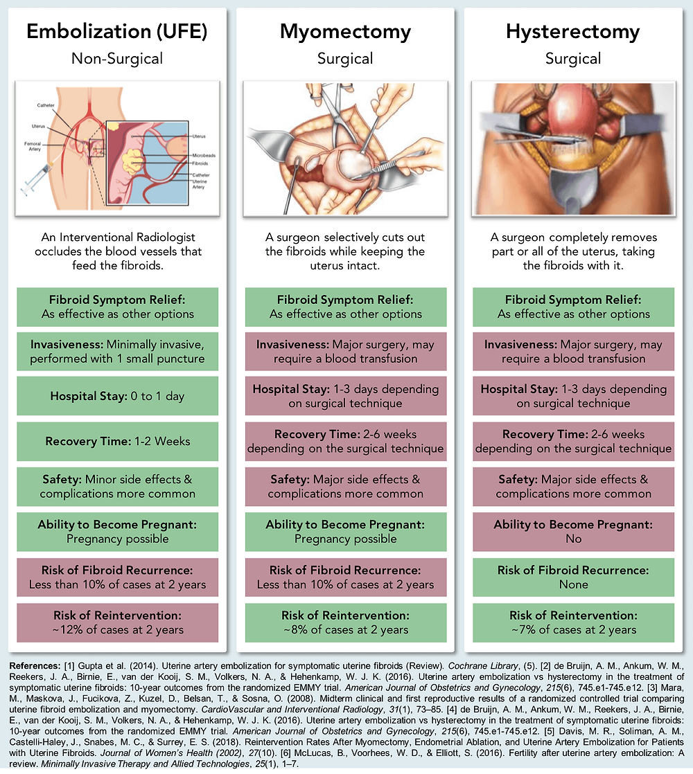 Infographic comparing hysterectomy vs. myomectomy vs. UFE for the treatment of fibroids