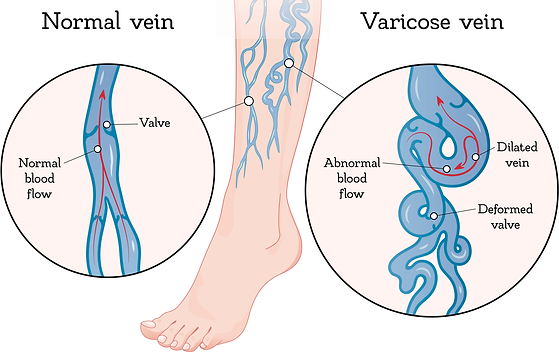 chronic-venous-disease