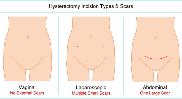 Three diagrams showing possible hysterectomy scars from vaginal, laparoscopic, and abdominal incisions