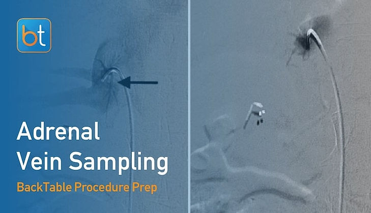 Step-by-step guidance on how to perform Adrenal Vein Sampling. Review tools, techniques, pearls, and pitfalls on the BackTable Web App.