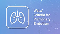 Wells' Criteria for Pulmonary Embolism on BackTable