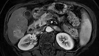 Hepatocellular carcinoma on CT