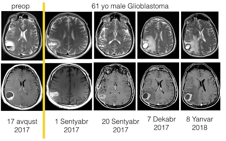 Glioblastoma.png