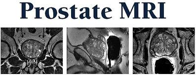 prostatemrimarquee3pics840x450_edited.jp
