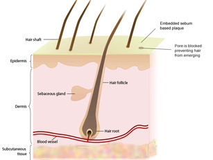 What Causes Hair to Fall & Not Grow Back?