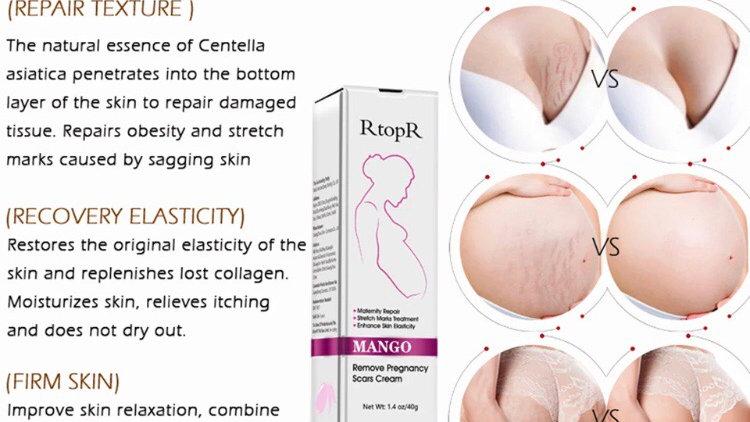 RtopR 40ml Mango Stretch Marks Remover Cream Eliminate Pregnancy Scars Maternity