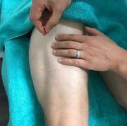 Dry Needling Sciatica Narellan Chiopractor greory Hills Camden Mount Annan