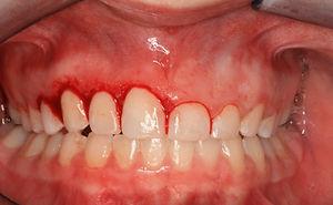 gingivectomie-procedure.jpg