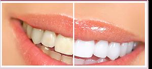 blanchiment-des-dents-au-laser.png