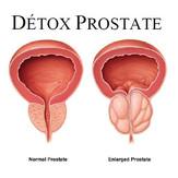detox_soin-de-la-prostate.jpg