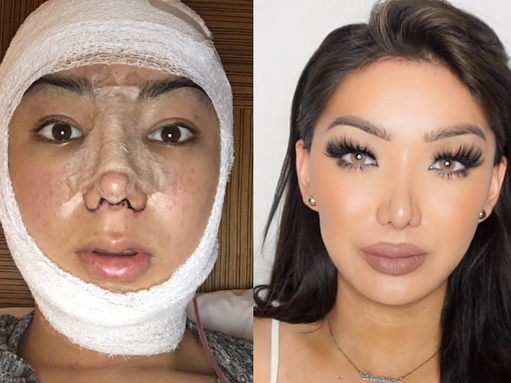 plastic surgery, the mystery of imaginary ugliness …