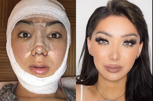 Woman did plastic surgery