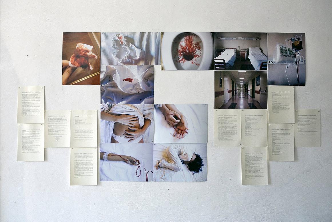 Loredana Denicola | L'oscurità ma io ho una luce | photo book project
