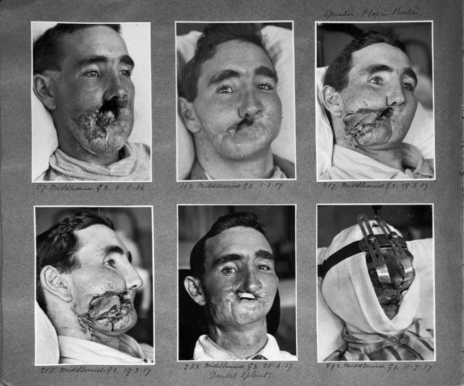 World War I, the birth of plastic surgery ....
