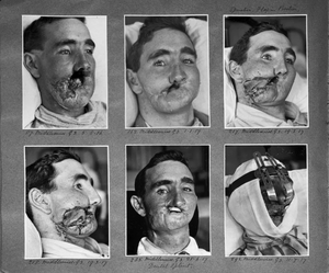 World War I, the birth of plastic surgery ....