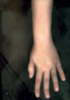 Hand, Scanning my body, photography projec
