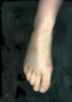 Loredana Denicola | Scanning a body | Foot