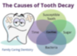 Cause of tooth decay