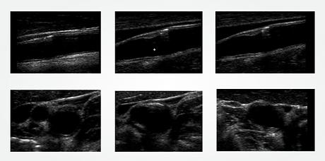 Karotis-Ultraschalluntersuchung des Pati