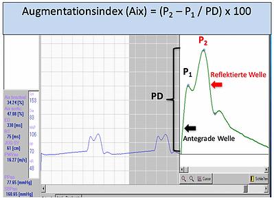 Arteriograph Pulswellenanalyse Zentraler Blutdruck und Augmentationsindex