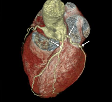 Computertomographie vom Herz des Patient