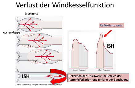 Windkesselfunktion.png