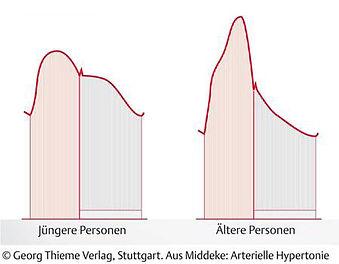 Pulswellenanalyse Augmentation.jpg