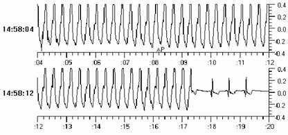 Tele-EKG 3.png