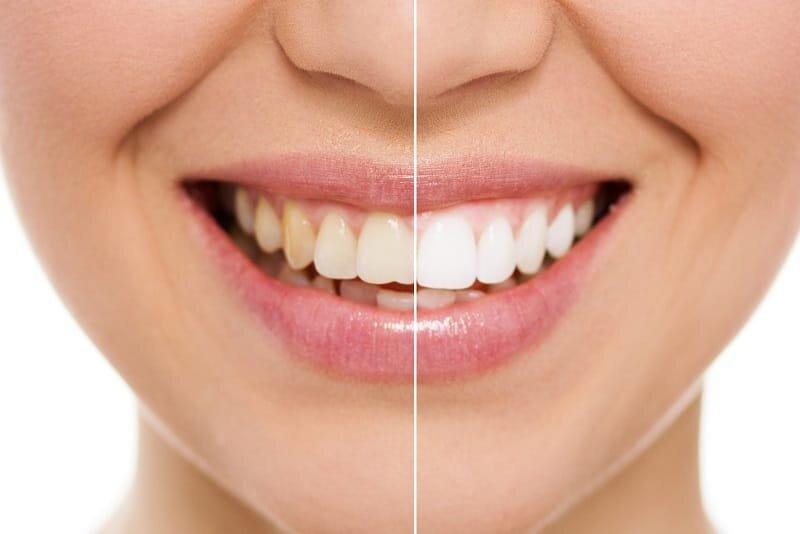 teeth whitening mississauga.jpg
