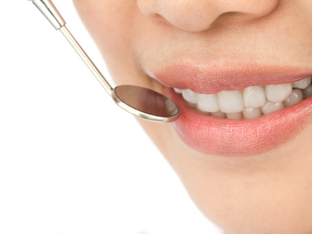 5 Things to Know About Tooth Whitening