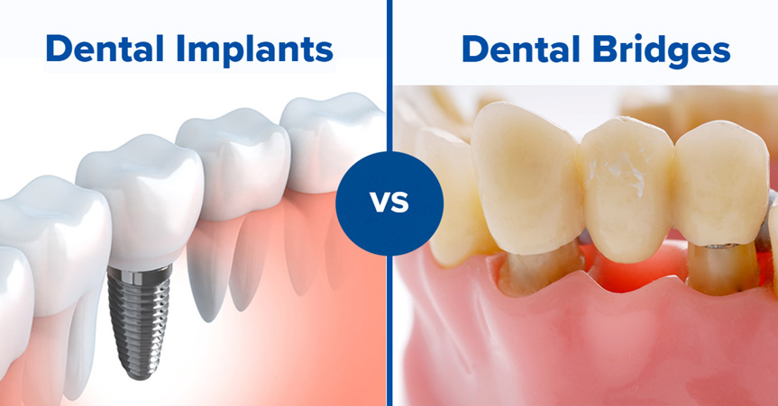 Dental implant vs dental bridges