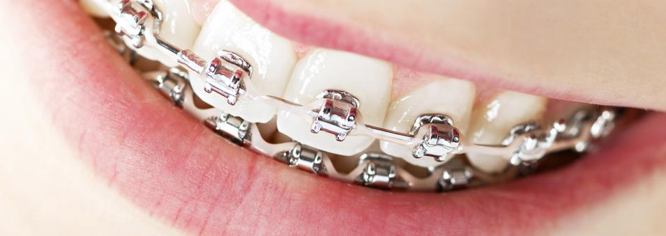 牙齿矫正治疗
