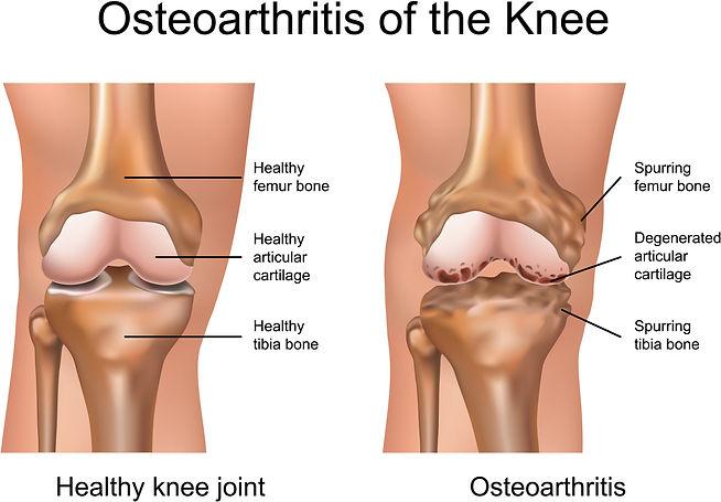 Osteoarthritis of the knee.jpg