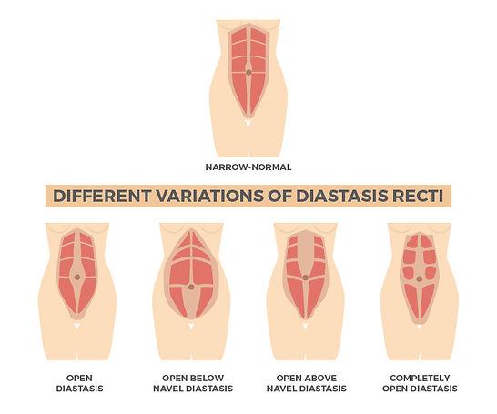 diastasis recti.jpg