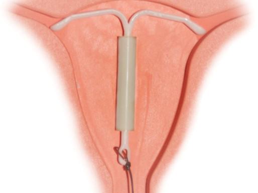 Stérilet hormonal Mirena: un véritable problème pour la santé des femmes