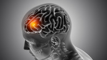 Diabetes & Hypertension May Trigger Neurological Complications in Covid-19 patients