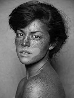 Freckles