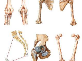 Osteocondrites