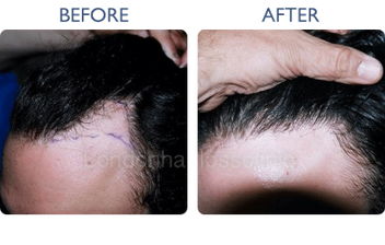 London Hair Loss Clinic | Mesotherapy