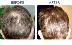 before_after02