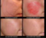 Skin Needling Before & After.png