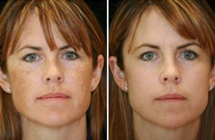 IPL treatment on face before and after