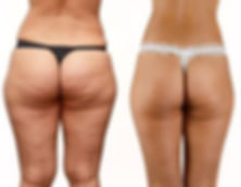 cellulite legs & butt rear.jpg