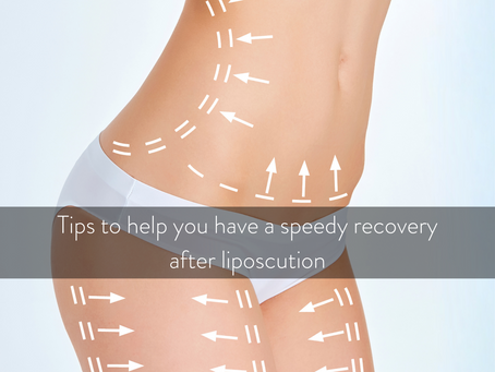 How to have a speedy recovery after liposuction